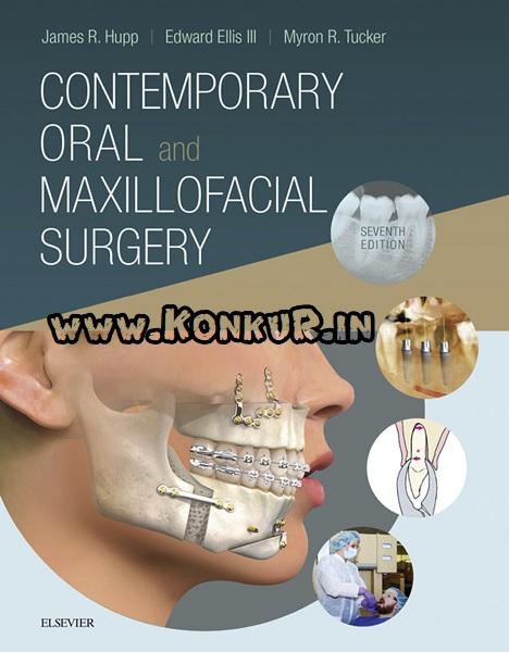 دانلود کتاب جراحی دهان و فک و صورت معاصر جیمز هاپ ویرایش 7