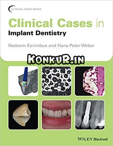 دانلود کتاب کیس های بالینی در دندانپزشکی ایمپلنت